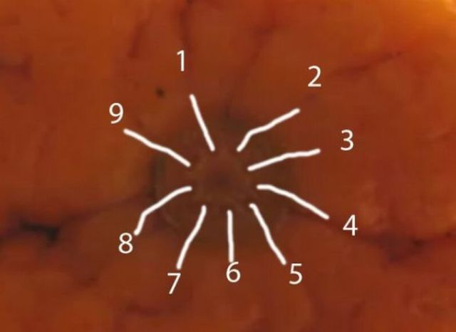 appelsin3